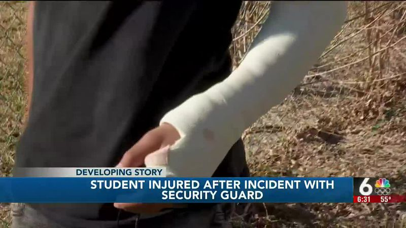 Student injured after incident with security guard
